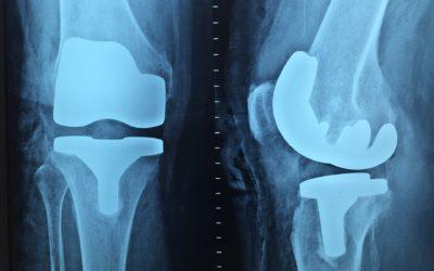 Najlepszą diagnozą jest artroskopia kolana.