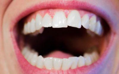 Dzisiejsza technika wykorzystywana w salonach stomatologii estetycznej być może sprawić, że odzyskamy śliczny uśmieszek.
